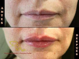 Aumento de labios - 634119
