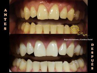 Blanquear dientes - 634212