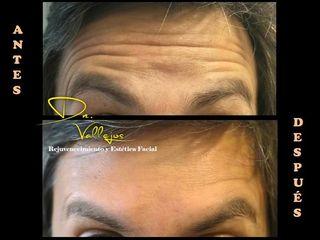 Botox hombre