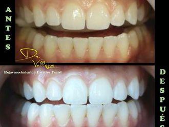 Blanquear dientes - 635626
