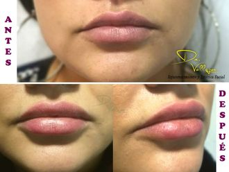 Aumento de labios - 637466