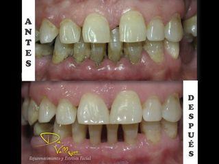 Carillas de porcelana y tratamiento periodontal (encías)