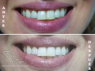 Blanqueamiento dental y cambio de resina