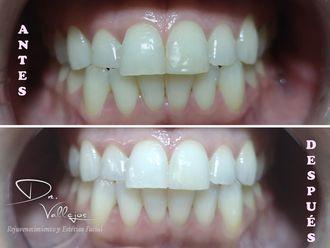 Blanquear dientes - 638349