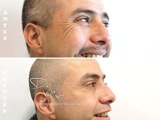 Botox contorno de ojos en Hombre
