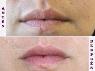 Aumento y perfilado labial