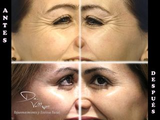 Botox contorno de ojos