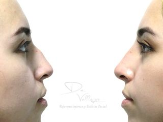 Rinomodelación con Ácido hialurónico JUVEDERM VOLUMA (18-24 meses)