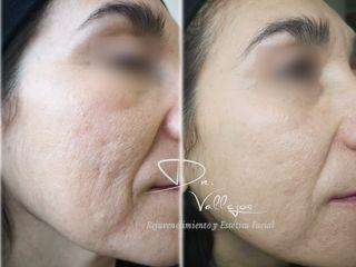 Plasma Rico en Plaquetas (tratamiento cicatrices secuelas de acné)