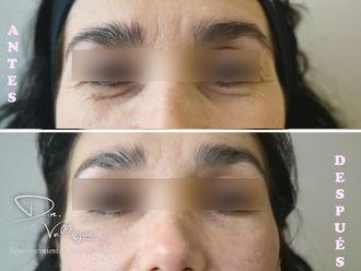 Tratamiento de ojeras - 641807