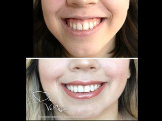 Blanqueamiento dental y Botox para sonrisa gingival