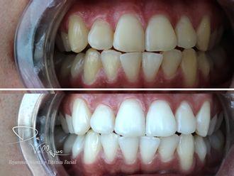 Blanquear dientes - 646333