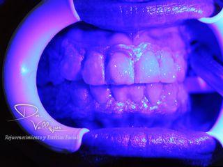 Blanqueamiento clínico + Luz LED
