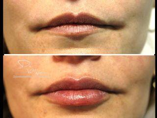 Aumento y perfilado labial - Dr. Julio Vallejos