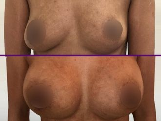 Aumento mamario - 626820