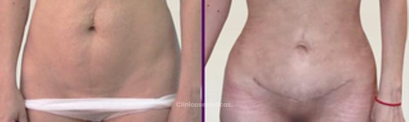 Lipo abdominoplastia