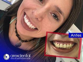Antes y después reconstrucción dental