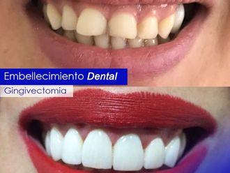 Endodoncia - 623072
