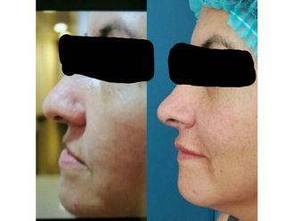 Aumento de labios - 631573