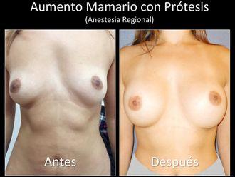 Aumento mamario - 631607