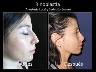 Rinoplastia - 631610