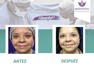 Rejuvenecimiento facial-630518