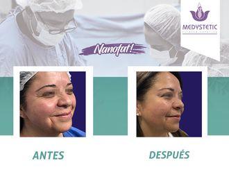 Rejuvenecimiento facial - 630519