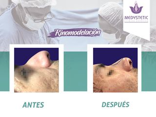 Clínica Medystetic, Dr. Erwin Molina