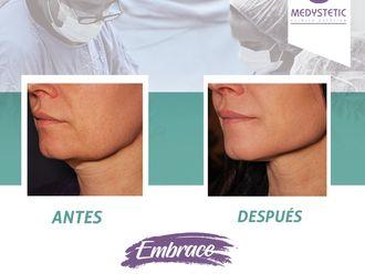 Rejuvenecimiento facial - 630525