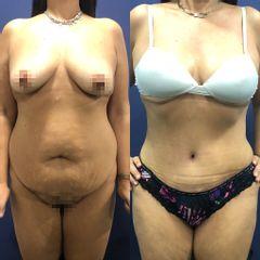 Abdominoplastia - Clínica Medystetic