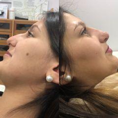 Rinomodelación - Clínica Medystetic