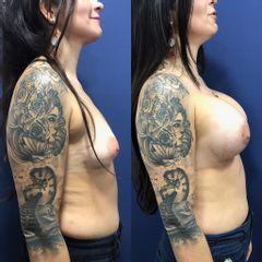 Aumento mamario - Clínica Medystetic