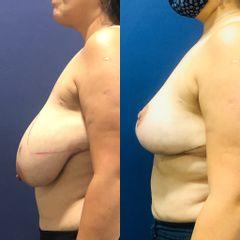 Reducción mamaria - Clínica Medystetic