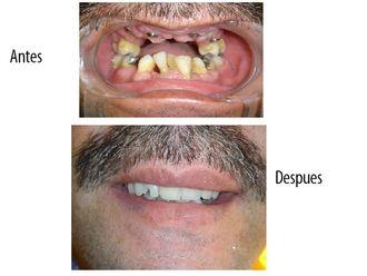 Implantes dentales - 575358