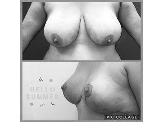 Aumento mamario - 629560