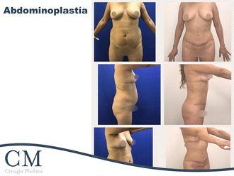 Abdominoplastia - 636774