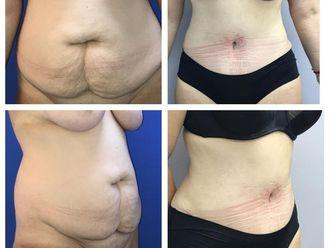 Abdominoplastia - 641058