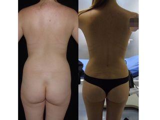 aumento mamario con una mini lipo