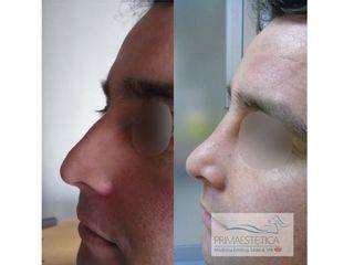 Rinoplastias Clinica Primaestetica