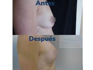 Pexia con implantes