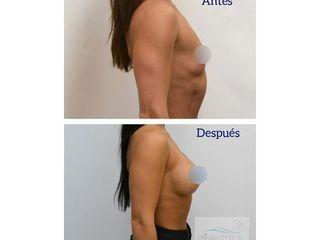 Aumento mamario - Clínica Primaestetica