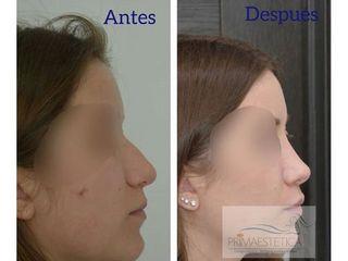 Rinoplastia - Clínica Primaestetica