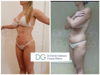 Liposucción Dr Galeazzo