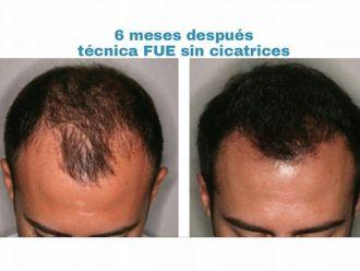 Implante Capilar-629642