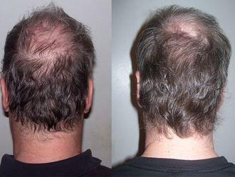 Implante Capilar-629649