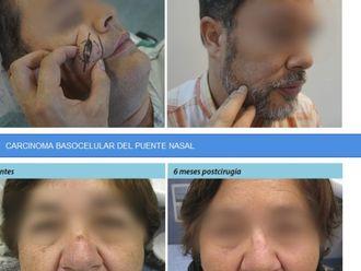 Borrar cicatrices - 575133