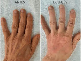 Manchas de la piel - 581997