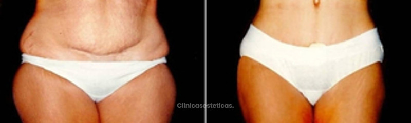 Abdominoplastía de Pitanguy