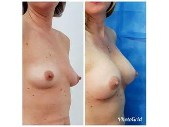 Aumento mamario-636577