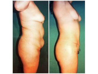 Abdominoplastia-636579
